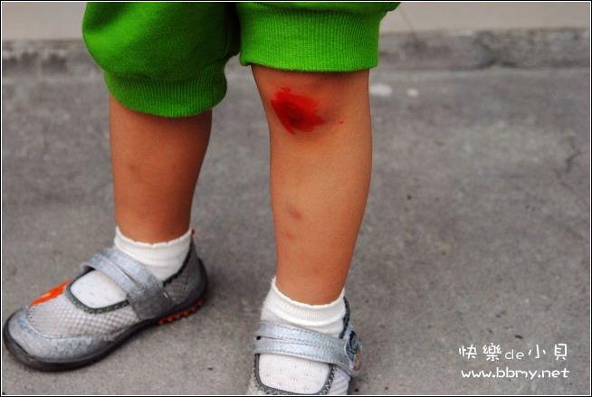 金东浩受伤日记照片